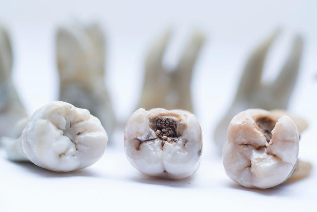 Endodonzia Devitalizzazione